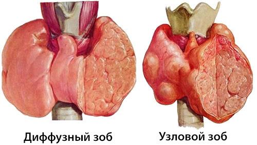 Питание при диффузном зобе health info.