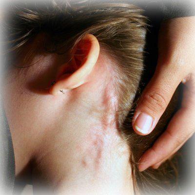 hiv symptom kvinna